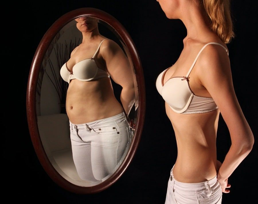 confirmation bias is common in anorexic sufferers - slim woman seeing herself as fat